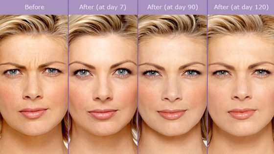 botox-before-and-after-photos