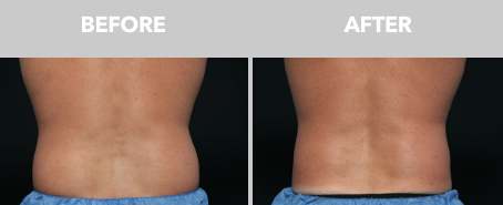before and after results from coolsculpting