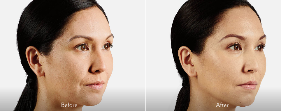 before and after results from Juvederm