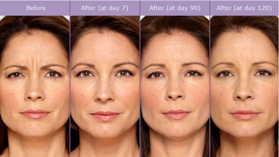 SCG-Skin-Before-After-from-Botox-Alecia