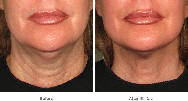 before-after ultherapy results