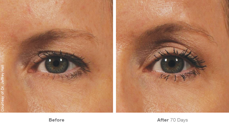before and after brow