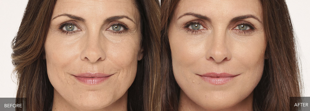 RADIESSE® Volumizing Filler by Faces Med Spa for aging concerns
