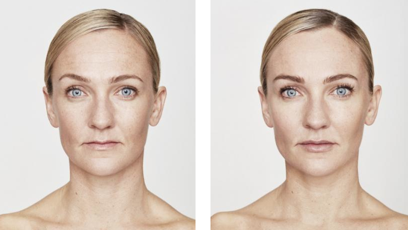 before and after results from restylane