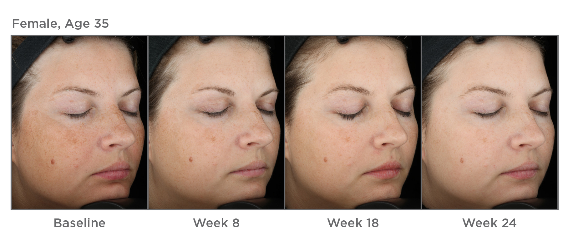 skinmedica results over a 24 week time period