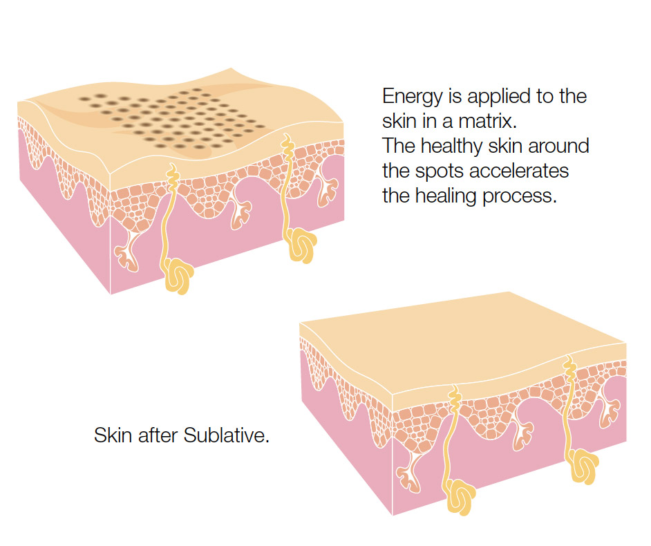 graphic depicting before and after of skin after sublative skin rejuvenation treatment