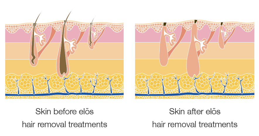 graphic depicting skin before and after elos hair removal treatments