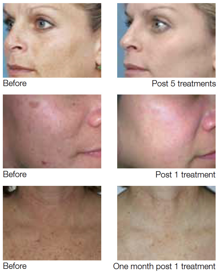 before-after treatment results over time of one treatment, five treatments, and one month of treatment from intense pulsed light (IPL)