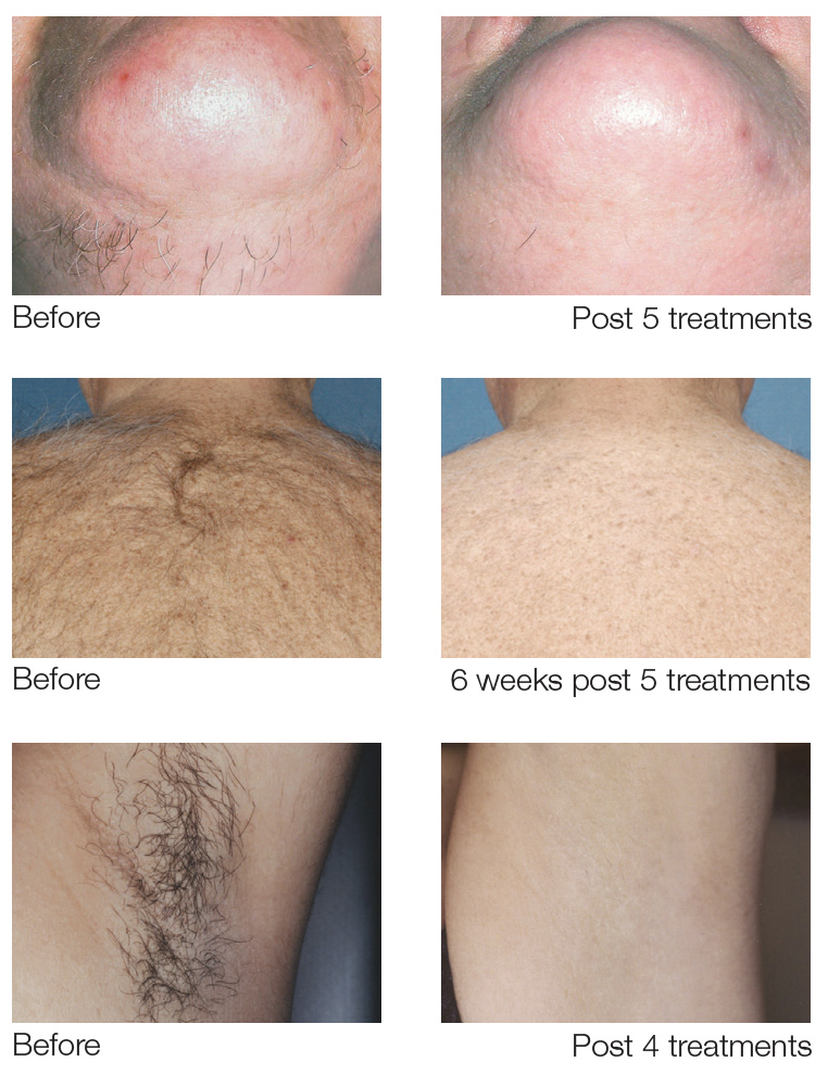before-after results of laser hair removal treatments