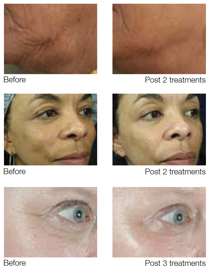 before-and-after photo results of sublative skin rejuvenation